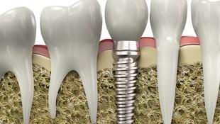 Implantes dentales en Trujillo