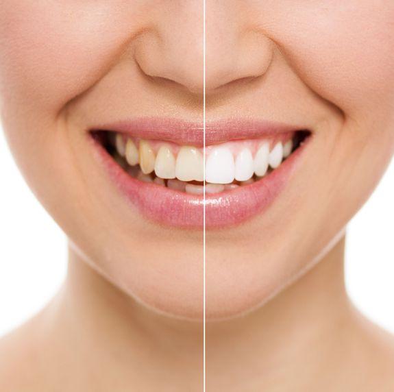 Estética dental en Trujillo