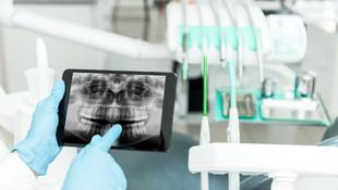 Radiografía 3D en Barcelona
