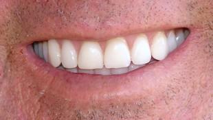 Clínica Dental Berga Hidalgo en Zaragoza