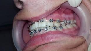 Resultado en 7 meses de tratamiento
