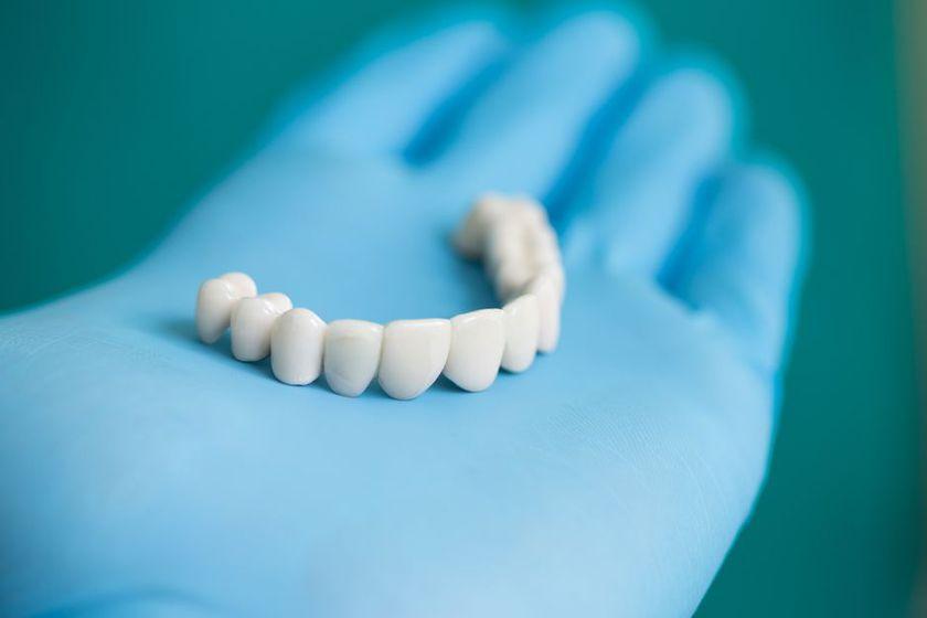 Prótesis dentales en Mataró