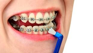 Ortodoncia convencional e invisible en Barcelona