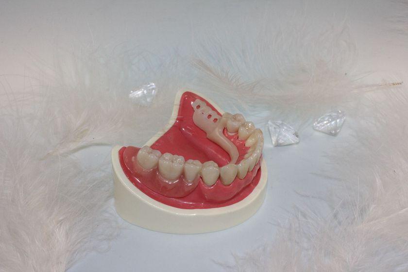 Protésicos dentales en Madrid