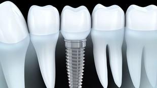 Implantes dentales en Linares