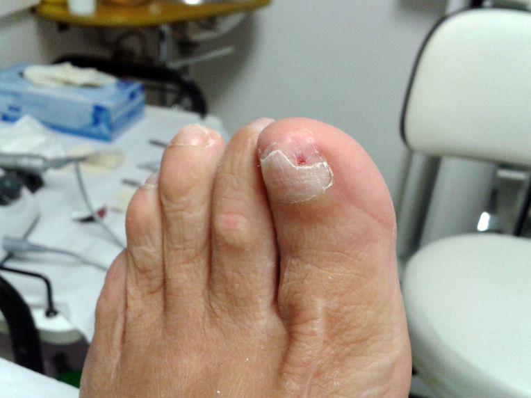 Tratamiento de uñas encarnadas en San Fernando de Henares
