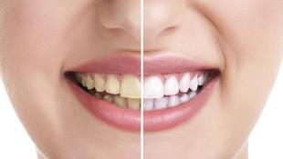 blanqueamiento dental,madrid,hortaleza,canillas