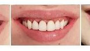 Carillas dentales  en un solo día