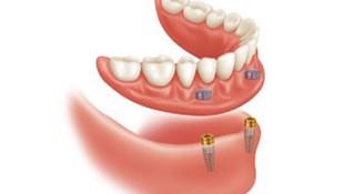 Implantes dentales en Valls