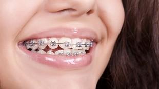 Ortodoncias a medida