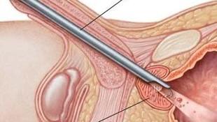 Unidad láser de próstata y crioterapia prostática  Palma de Mallorca http://www.drcrespiurologo.es/es/