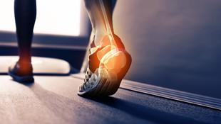 Cirugía del pie en Cornellà De Llobregat