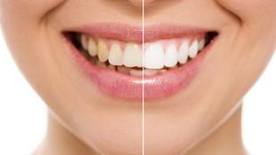Blanqueamiento dental en Madrid
