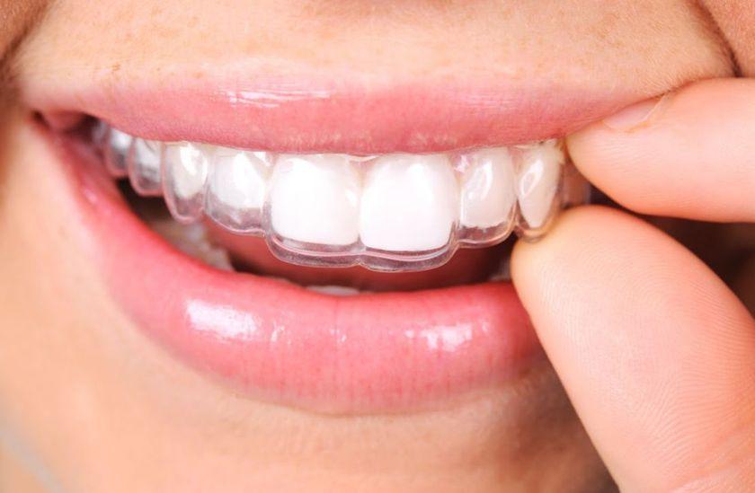 Ortodoncia invisible en Colmenarejo