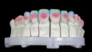 Estética dental en Sagadent Milenium