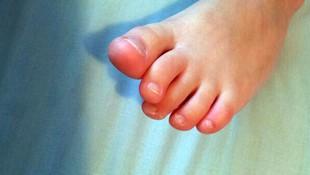 Tratamiento integral de las distintas alteraciones y trastornos del pie en San Fernando de Henares