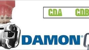 Ortodoncia Damon Santutxu