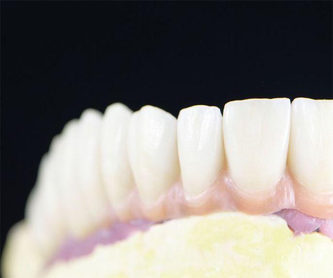 Prótesis dentales de la mejor calidad