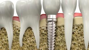 Implantes dentales en Galapagar