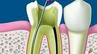 Endodoncia Basauri