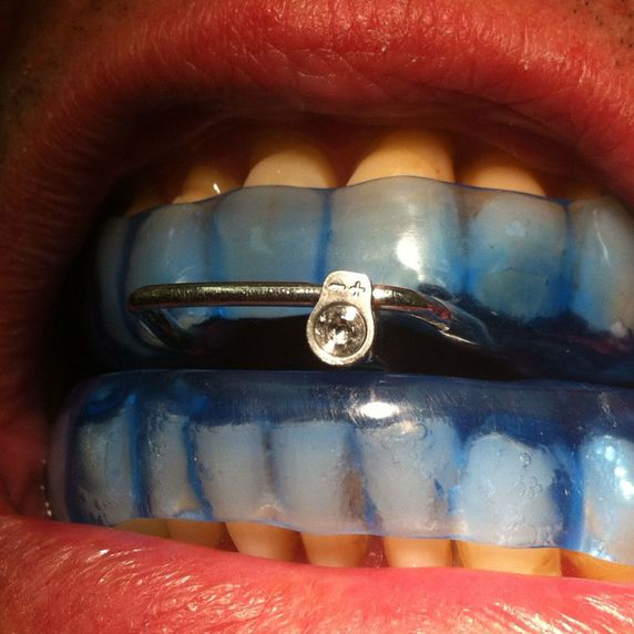 D.A.M,dispositivo de avance mandibular,apnea del sueño,aparato antirronquidos.